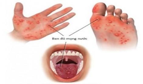 Bộ Y tế khuyến cáo bệnh tay - chân - miệng đang lan rộng