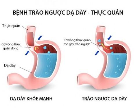Cách ngăn chặn tình trạng trào ngược axit dạ dày