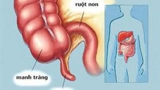 Viêm ruột thừa có thể trị bằng kháng sinh?