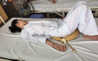 Một phụ nữ bị liệt sau 2 tháng tự ý uống thuốc nam chữa đau khớp