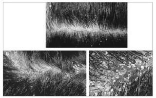 Nắng nóng, tăng nguy cơ nấm da đầu