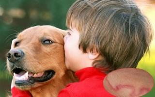Trẻ nhỏ dễ bị nhiễm giun sán khi chơi với chó mèo