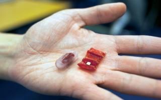 Robot siêu nhỏ giúp lấy dị vật lỡ nuốt vào bụng