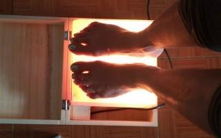 Nguy cơ bỏng chân khi xông nóng trên hộp đá muối