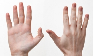 10 dấu hiệu trên đôi tay tố cáo tình trạng sức khỏe