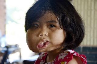 Xót xa cô bé bị biến dạng khuôn mặt