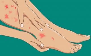 6 dấu hiệu ở chân cảnh báo tình trạng sức khỏe