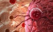 Phát hiện vi khuẩn gây ung thư, tiểu đường