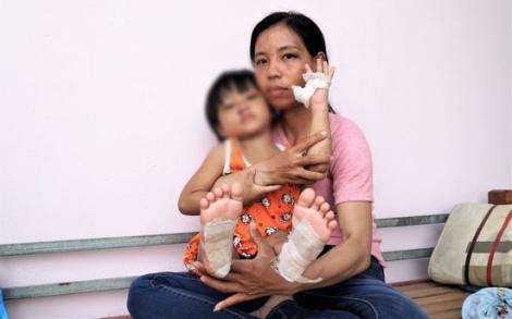 Bé gái 4 tuổi bị cha dượng dí tay chân vào bô xe máy