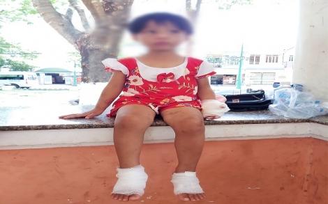 Quỹ Bảo trợ trẻ em tỉnh tặng quà cho bé gái 4 tuổi bị cha dượng bạo hành