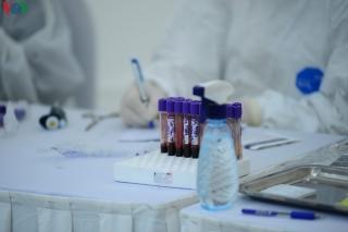 Sử dụng huyết tương điều trị Covid-19 là hướng mới, nên thử nghiệm?
