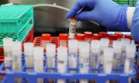Anh phát hiện biến thể SARS-CoV-2 mới có khả năng kháng miễn dịch đáng lo ngại