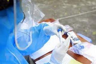 Ca tử vong thứ 50 liên quan đến Covid-19 là bệnh nhân nam 67 tuổi, ung thư giai đoạn cuối